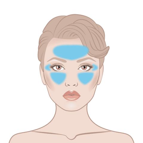 Beelift Skin Area Diagram