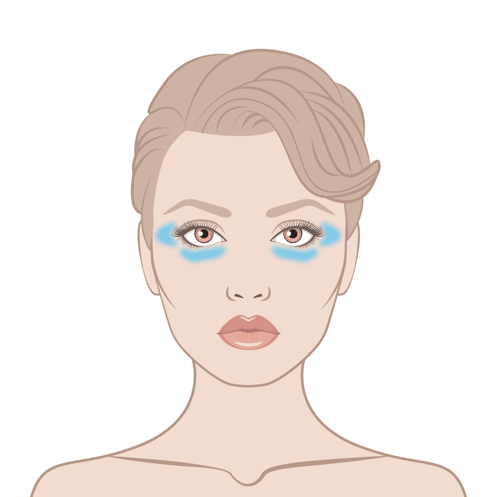 Instant Eyelift Skin Area Diagram