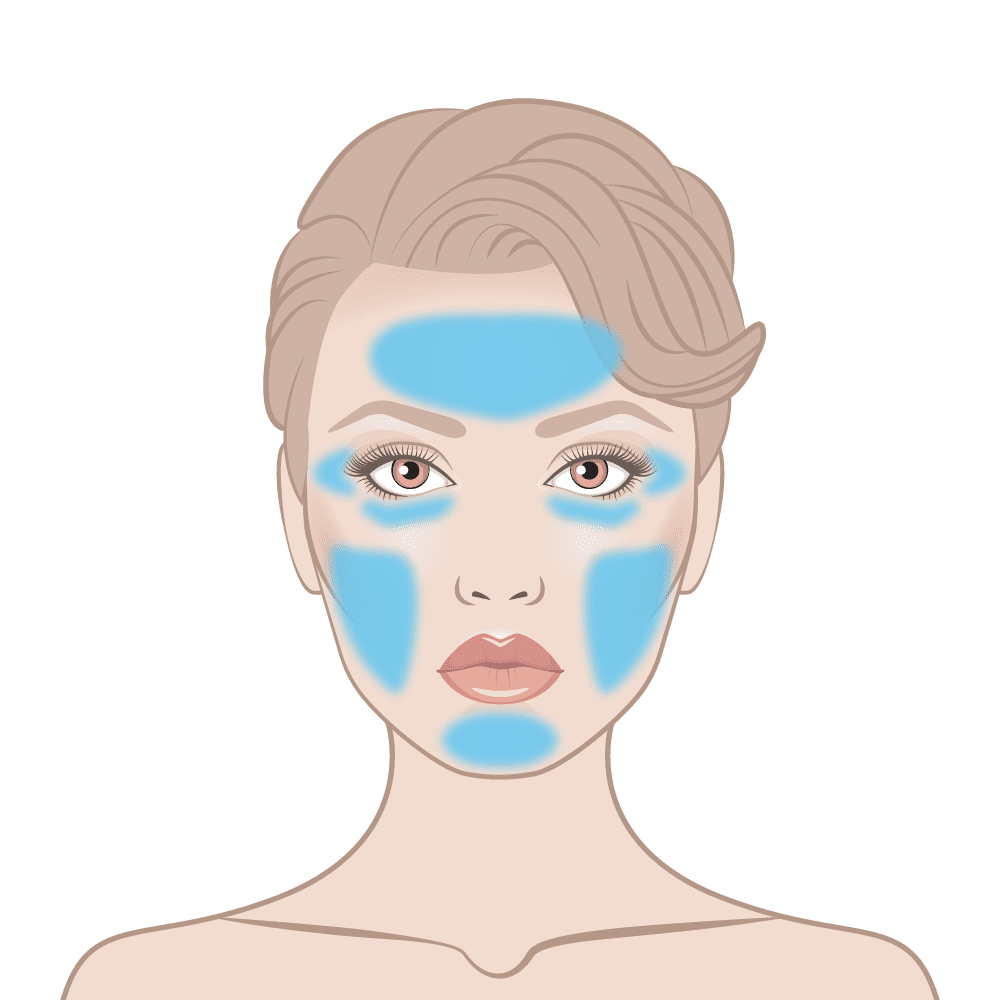 Instant Facelift Skin Area Diagram