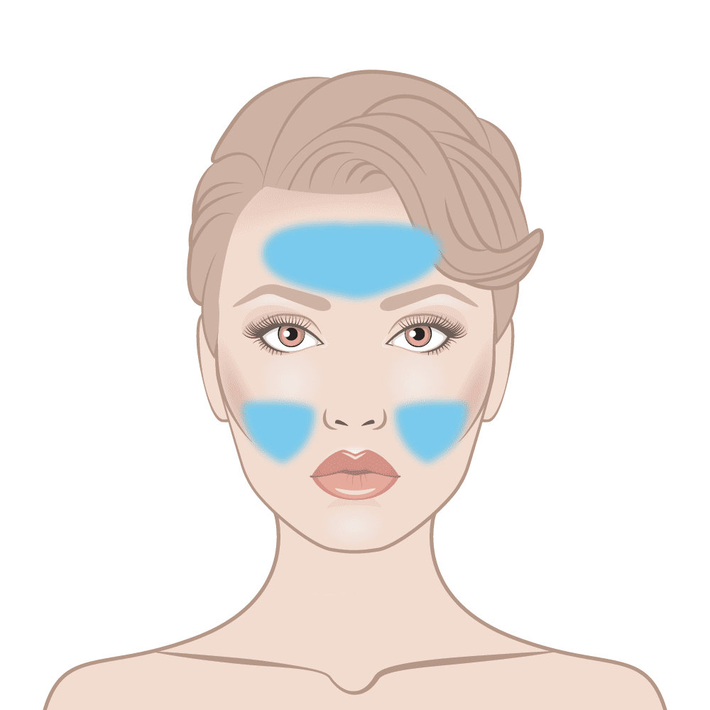 T Zone Zit Zapper Skin Area Diagram